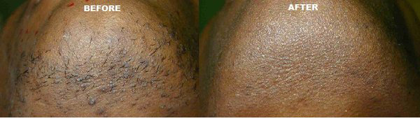 Obagi Clenziderm Before After